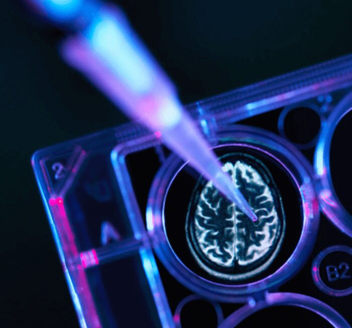 Target ALS Awards Six Innovative Research Teams with Additional Target Discovery Funds