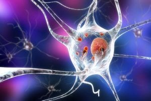 Similarities in Neurodegenerative Disorders May Lead to New, Common Therapies